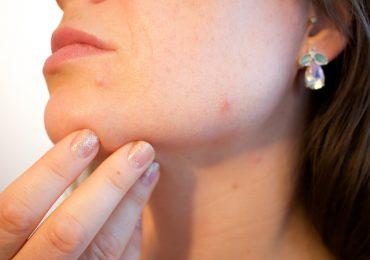 Choroby skóry a stres